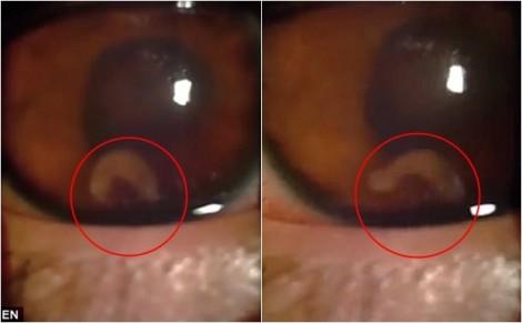 Kinh hoàng sán lá bơi trong mắt khiến thiếu niên 17 tuổi mù vĩnh viễn