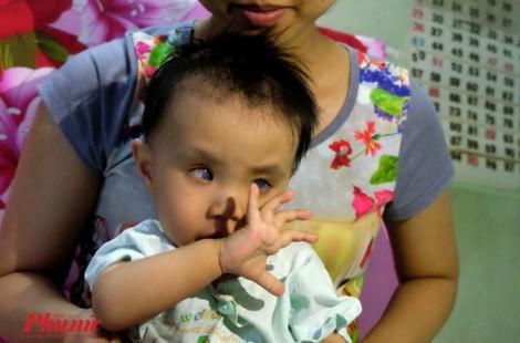 Hàng loạt trẻ biến chứng sau mổ ở Bệnh viện Mắt là do ngẫu nhiên?