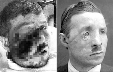 Bộ ảnh: Lính Anh được tái tạo gương mặt bị tàn phá trong Thế Chiến I