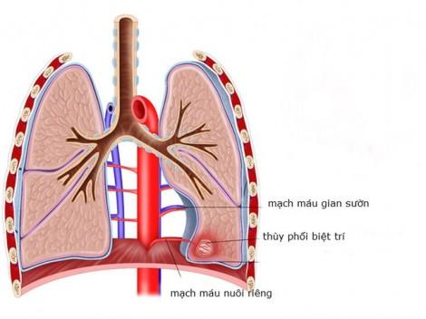 TP.HCM: Phát hiện trường hợp trẻ có phổi không dùng để hô hấp