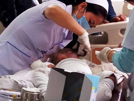 Đốt đèn trong màn để bắt muỗi, mẹ con thai phụ bị bỏng nặng