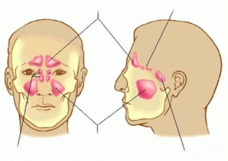 Hơn 83% bệnh nhân bị viêm xoang khỏi bệnh nhờ phẫu thuật nội soi