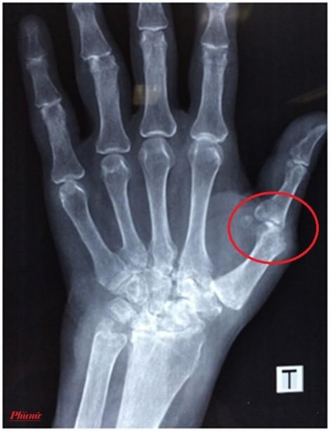 Người phụ nữ cầu cứu bác sĩ vì các khớp ngón tay bỗng bị co cứng