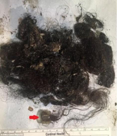 Phát hiện búi tóc trong dạ dày bệnh nhân có cả kẹp tóc