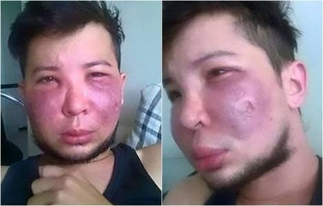 Muốn đẹp giống phụ nữ, nam thanh niên bị hoại tử mặt vì phẫu thuật bơm má thất bại