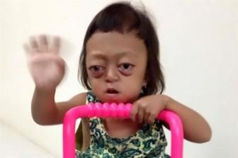 Bé gái mắc bệnh hiếm bị mẹ ruột bán cho bọn buôn người