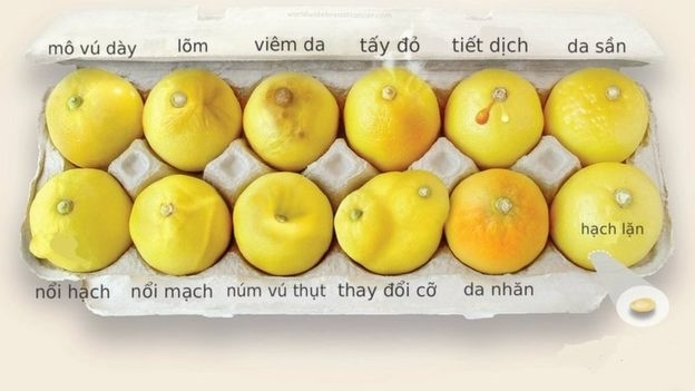 Gan 22% benh nhan Viet Nam mac loai ung thu vu de di can len nao