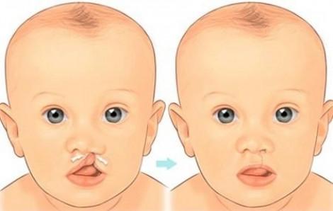 Phẫu thuật miễn phí cho bệnh nhi sứt môi, hở vòm