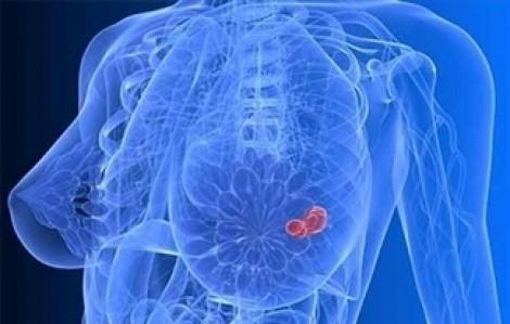 Giảm giá 30% khám tầm soát ung thư vú