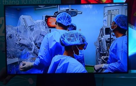 Robot mổ nội soi thành công 222 ca trong năm đầu tiên triển khai