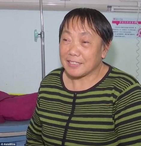Một phụ nữ mọc răng trong lỗ mũi