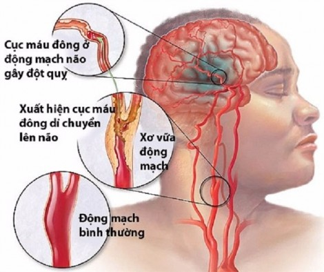Vỡ mạch máu não khi mang thai, người mẹ lúc nhớ lúc quên