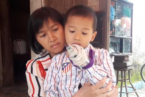 Phụ huynh tố cô giáo mầm non đánh gãy ngón tay bé 5 tuổi