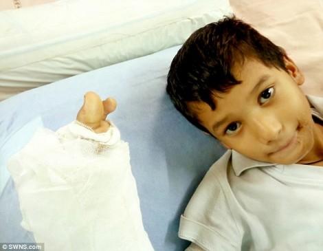 Mới 7 tuổi, bé trai buộc cắt bỏ hết 10 ngón tay vì nghịch điện