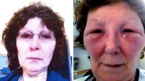 3 phụ nữ biến dạng mặt vì bị lừa tiêm botox giả