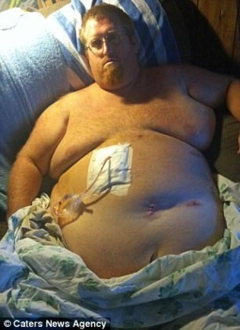 Vì vợ con, người đàn ông nặng hơn 200kg giảm còn 68 kg trong 2 năm