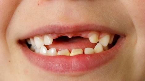 Bé gái nuốt cây kim dài 3cm khi trám răng sâu