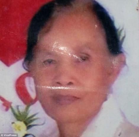Bác sĩ không phát hiện khối u, cụ bà bị vỡ sọ, biến dạng mặt