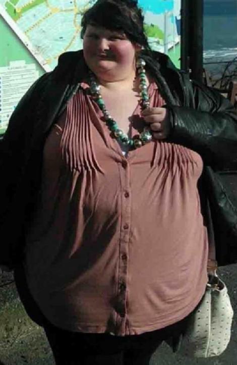 Cô gái bị bạn trai chia tay vì giảm hơn 100kg để trở thành 'hot girl'