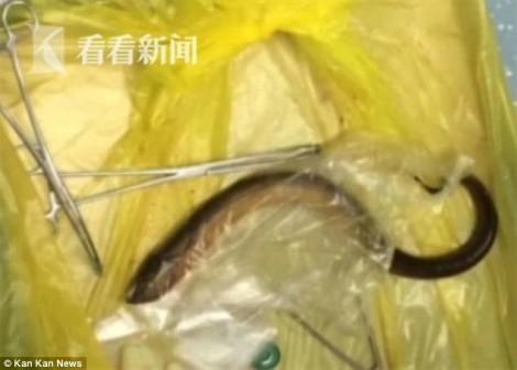 Các bác sĩ lôi con lươn dài 40cm ra khỏi bụng bệnh nhân
