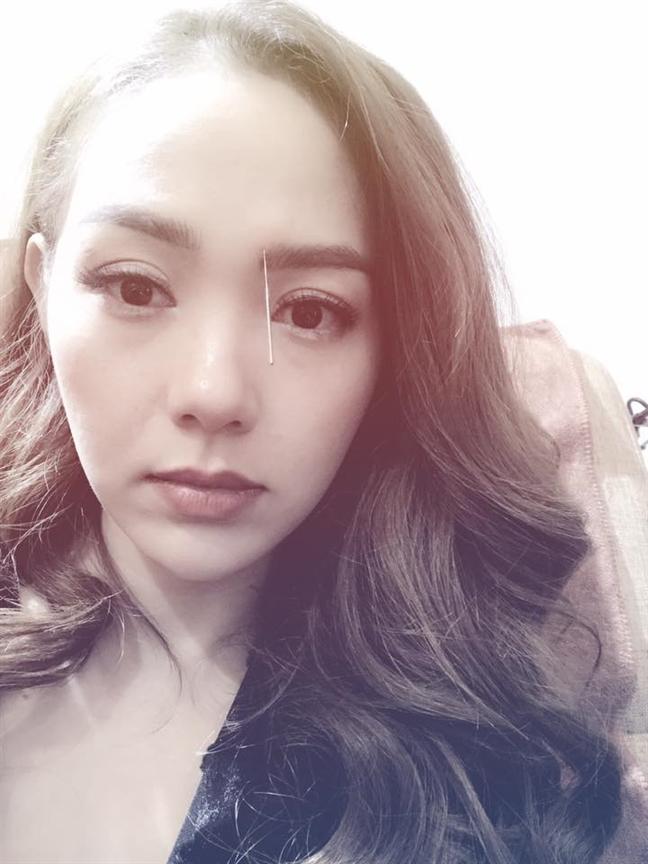Minh Hang loi hen voi khai mac 'Lien hoan Phim Viet Nam 2017' vi bi chan thuong