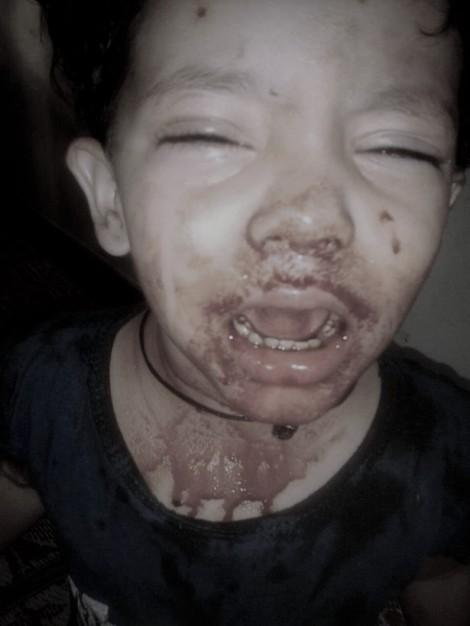 Bé gái 3 tuổi chảy máu ở mắt mũi miệng mỗi ngày