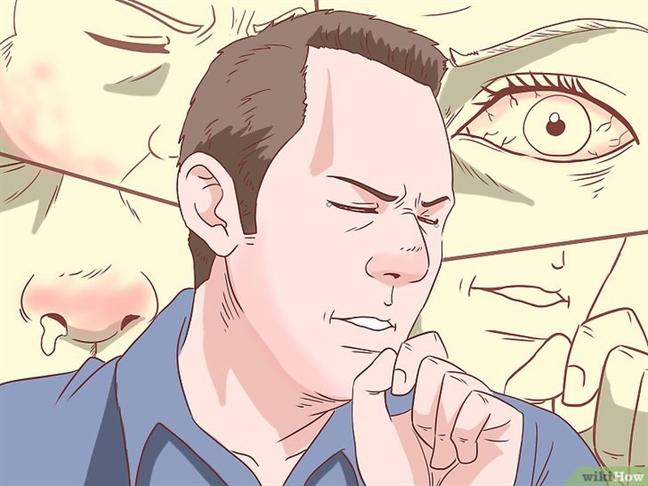 5 dau hieu cho thay ban bi di ung khang sinh