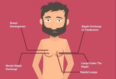 Nam giới có vú to dễ mắc nhiều bệnh nguy hiểm