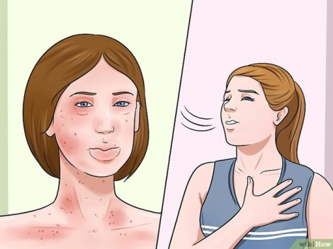 5 dấu hiệu cho thấy bạn bị dị ứng kháng sinh