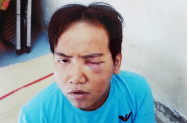 Vụ bé trai 6 tuỏi bị bảo vẹ dan phó sát hại: Hung thủ có khả nang bị tam thàn phan liẹt