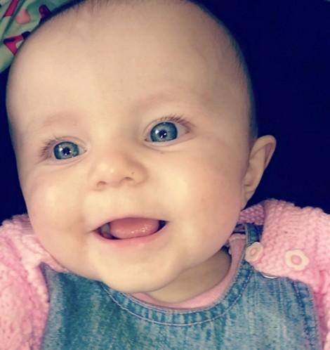 Bé gái 10 tháng tuổi như 'búp bê' bị cắt bỏ tay phải do viêm não