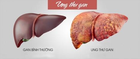 Dinh dưỡng cho bệnh nhân ung thư gan giai đoạn cuối