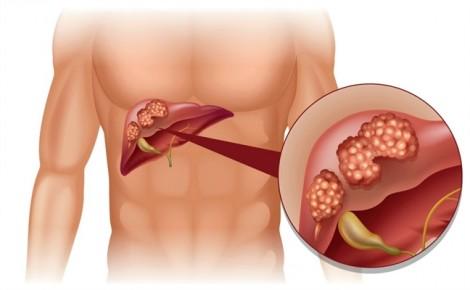 Cách nhận biết ung thư gan