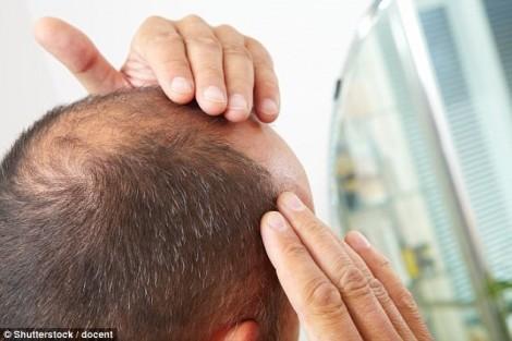 Nam giới bạc tóc và hói đầu sớm trước 40 tuổi dễ bị bệnh gì nhất?