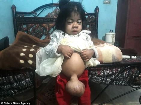 Đau lòng bé gái 7 tuổi bị thoát vị rốn nặng hơn 1kg