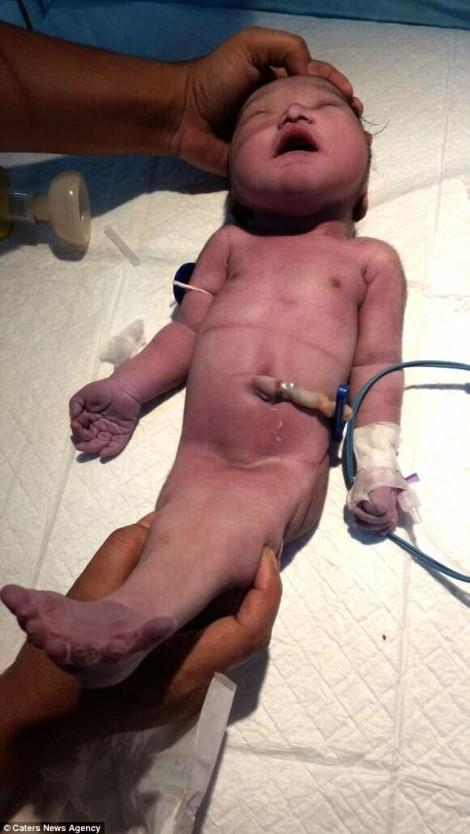 Cuộc sống ngắn ngủi vài giờ của em bé bị hội chứng người cá