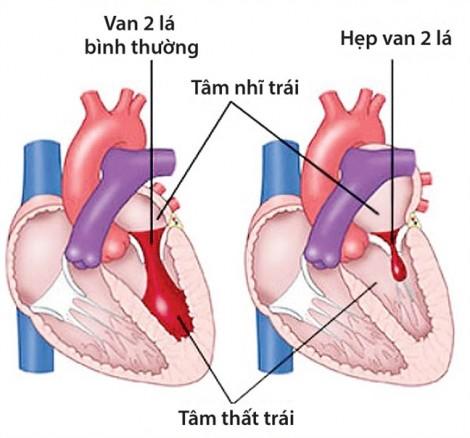Tự ý ngưng kháng sinh, trẻ bị biến chứng hư van tim
