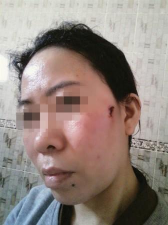 Các cơ quan chức năng vào cuộc vụ 8 lao động Việt Nam kêu cứu từ Ả-Rập Xê-Út