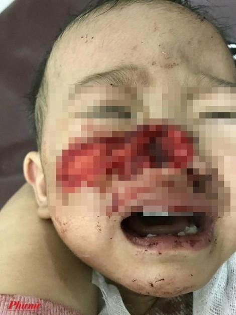Bé trai 1 tuổi ở Đắk Lắk bị chó nhà to gấp 3 lần cắn nát mặt