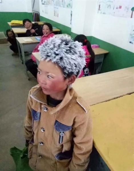 Xót xa cậu bé 'đầu tuyết', hàng triệu người hảo tâm giúp sức tới trường