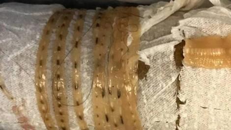 Sán dây gần 1,7m sống trong cơ thể người đàn ông thích ăn sushi