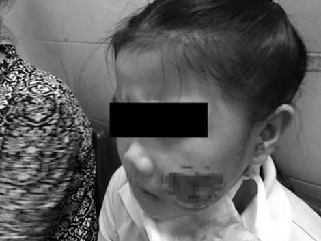 Bé gái 8 tuổi bị chó nhà cắn nát mặt