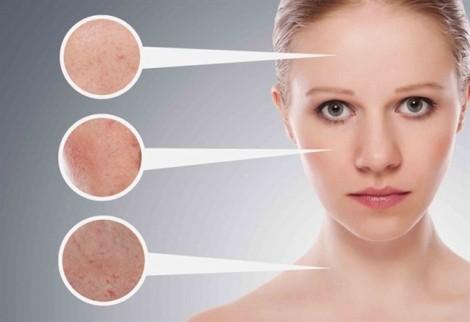 Cách trị mụn ẩn dưới da tại nhà chỉ với 4 bước