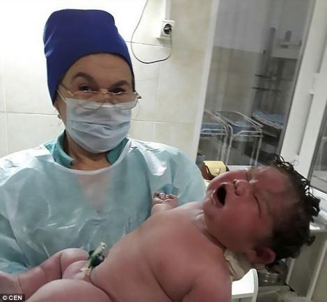 Sản phụ sinh em bé nặng 6kg không cần thuốc giảm đau