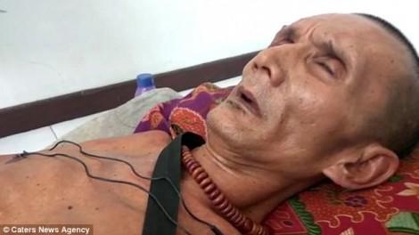 Sau tai nạn xe buýt, cơ thể người đàn ông bị hóa đá hơn 20 năm