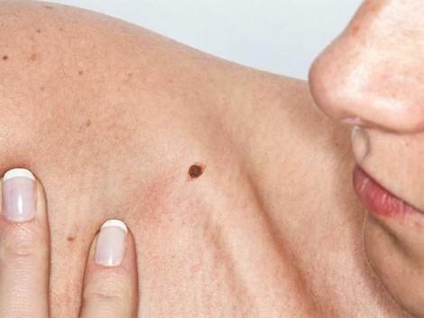Ai dễ bị ung thư da?