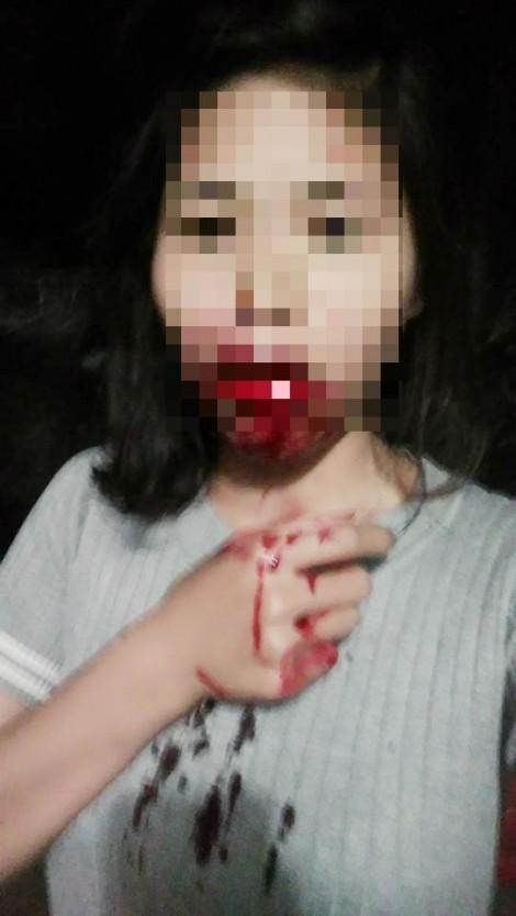 Chồng đánh vợ hộc máu miệng chỉ vì nửa đêm bị vợ gọi dậy