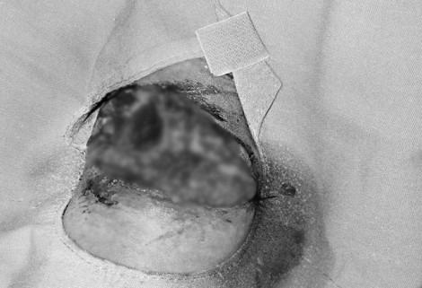 Bé gái ở Đồng Nai bị pháo nổ dập phổi