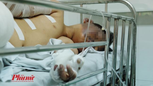 Nan nhan nang nhat trong vu no khi gas ham cau o Binh Duong da tu vong