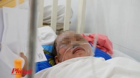 Nạn nhân nặng nhất trong vụ nổ khí gas hầm cầu ở Bình Dương đã tử vong